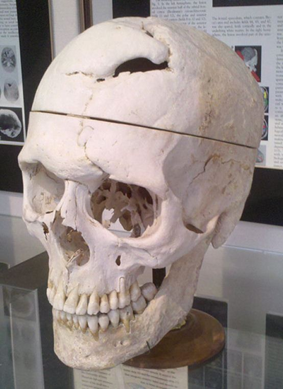 Simulated_Connectivity_Damage_of_Phineas_Gage_SkullDisplayWarren